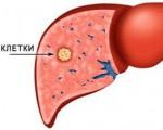 Степени дифференцировки рака печени