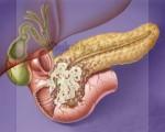 Доброкачественные и злокачественные опухоли поджелудочной железы