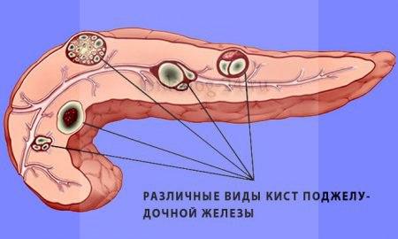Цистаденокарцинома поджелудочной железы
