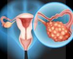 Цистаденокарцинома яичника: серозная, муцинозная, возможные пути лечения и прогноз