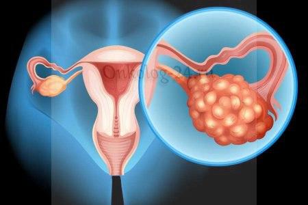 Цистаденокарцинома яичника