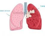 Симптомы и лечение гамартомы лёгкого