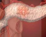 Что такое инсулинома: причины, симптомы и лечение