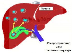 Распространение опухоли