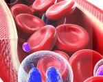 Какие симптомы сопровождают хронический лейкоз его диагностика и лечение, прогноз жизни для пациентов