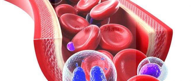 Хронический лейкоз