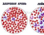 Что такое лейкоз, какие симптомы и признаки лейкоза у взрослых и детей, кто находится в группе риска? Лечение и прогноз жизни при лейкозе