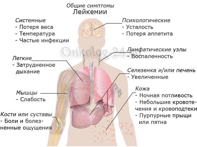 Симптомы и проявления лейкемии