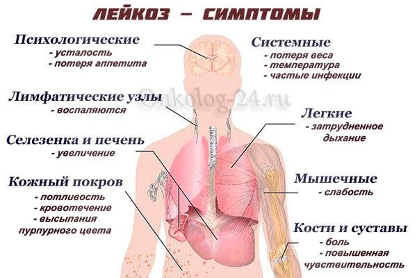 Проявление лейкоза
