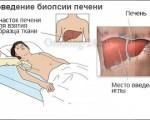 Биопсия печени, показания, подготовка и проведение процедуры