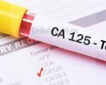 Онкомаркер СА 125 — расшифровка и норма показателей
