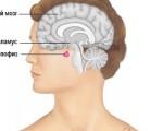 Аденома гипофиза — симптомы и лечение у женщин и мужчин