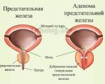 Аденома простаты у мужчин — симптомы и проявления, операция по удалению опухоли предстательной железы
