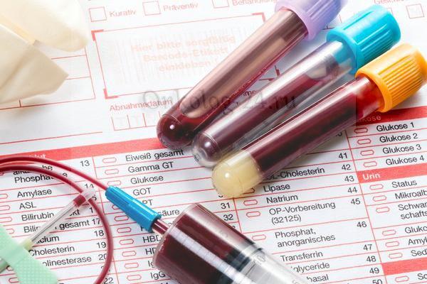 Beta-2-mikroglobulin v krovi