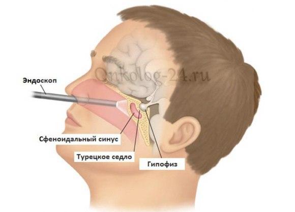 Lecheniye adenomy gipofiza