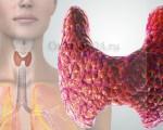 Медуллярный рак щитовидной железы — симптомы, лечение и прогноз после операции