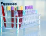 Онкомаркеры рака молочной железы, как правильно сдавать анализ и какие маркеры показываю рак груди?
