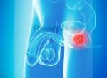 Подбор интересного видеоматериала раскрывающего симптомы и развитие, диагностику и лечение рака предстательной железы