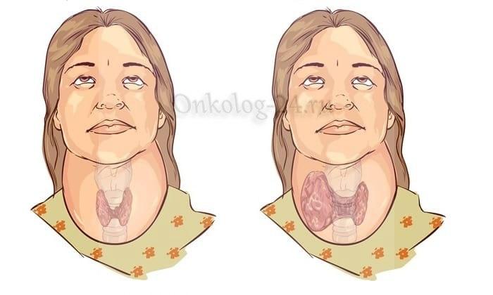 Simptomy medullyarnogo raka shchitovidnoy zhelezy