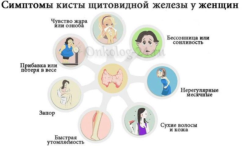 Simptomy raka shchitovidnoy zhelezy u zhenshchin