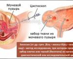 Биопсия мочевого пузыря у мужчин и женщин, как проводится, и какие результаты исследования?
