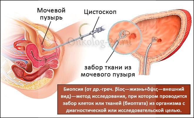 Biopsiya mochevogo puzyrya