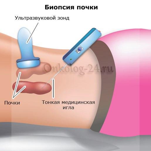Biopsiya pochek