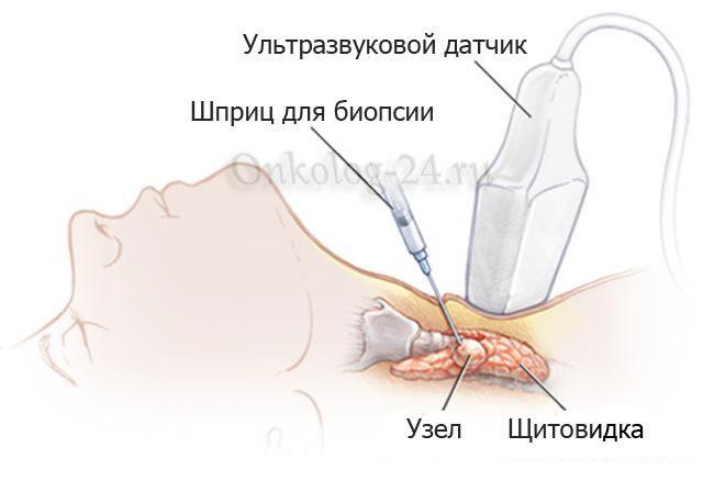 Biopsiya uzla shchitovidnoy zhelezy