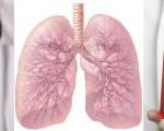 Онкомаркеры на рак легких и бронхов — виды маркеров, подготовка, сдача анализа и расшифровка результата