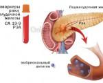 Онкомаркеры поджелудочной железы