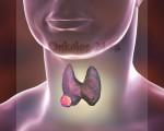 Операция на щитовидной железе, виды операций по удалению опухолей и узлов, подготовка, проведение, реабилитация и последствия