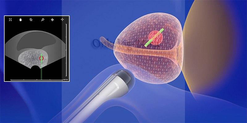 Provedeniye biopsii prostaty