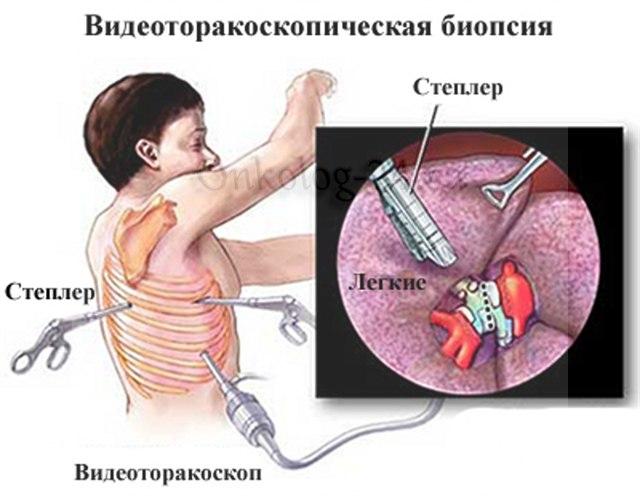 Videotorakoskopicheskaya biopsiya legkikh
