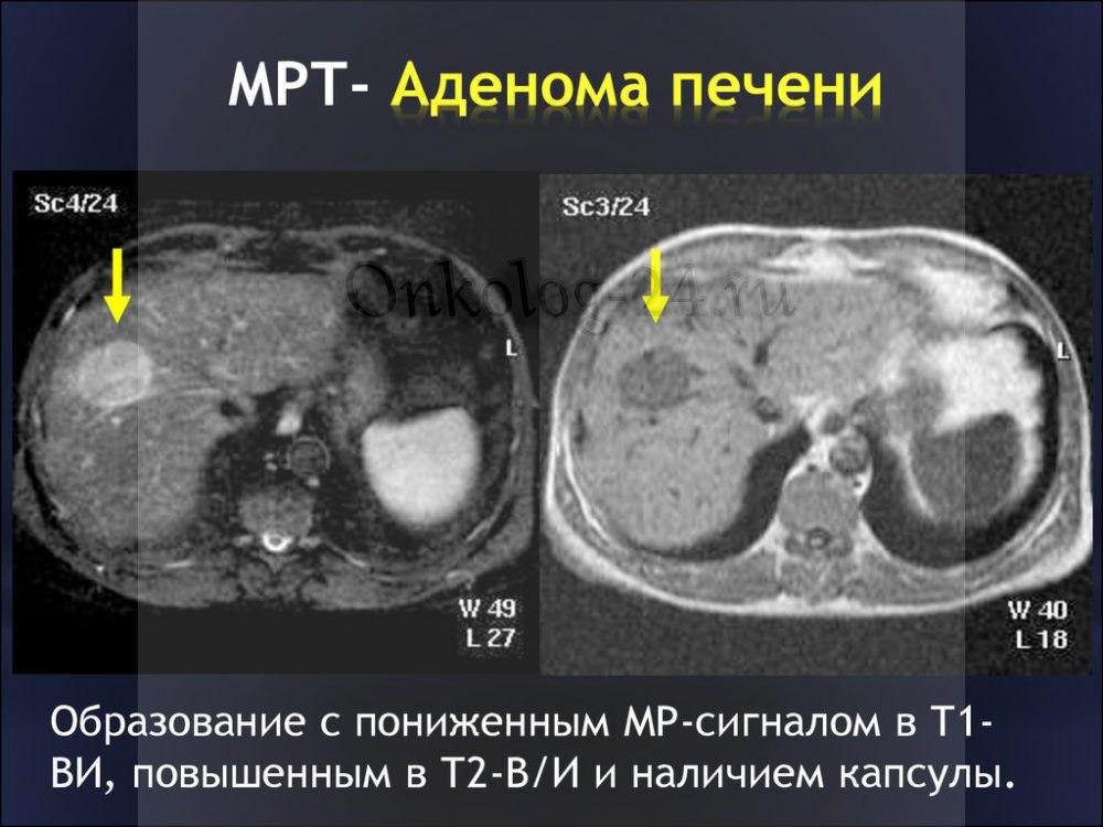adenoma pecheni na MRT