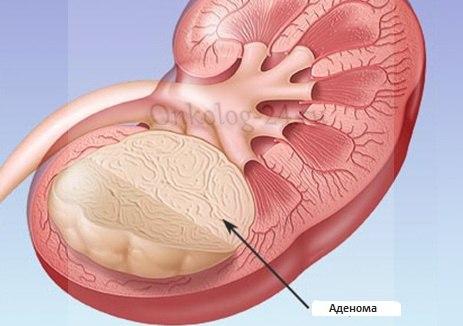 adenoma pochki