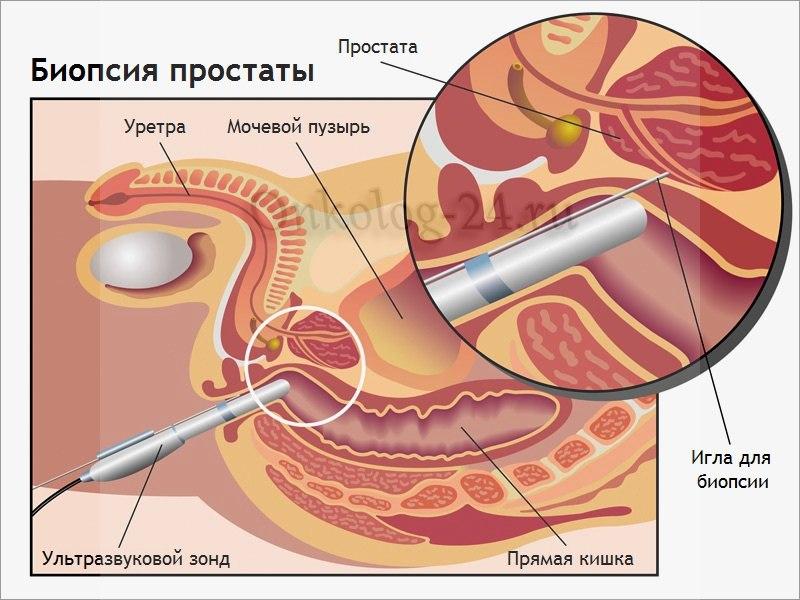 biopsiya predstatel'noy zhelezy