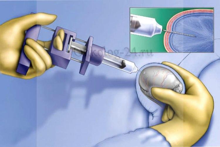 biopsiya yaichka u muzhchin