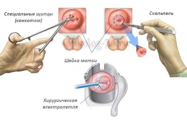Biopsiya sheyki matki