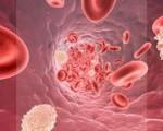 Миелопролиферативные заболевания, что это такое, причины, симптомы, лечение и прогноз