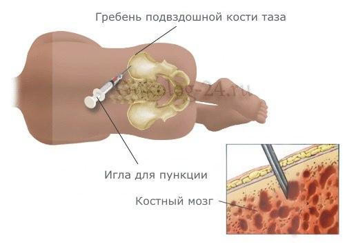 biopsiya kosti