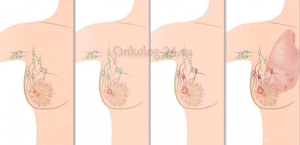 limfouzly pri rake grudi
