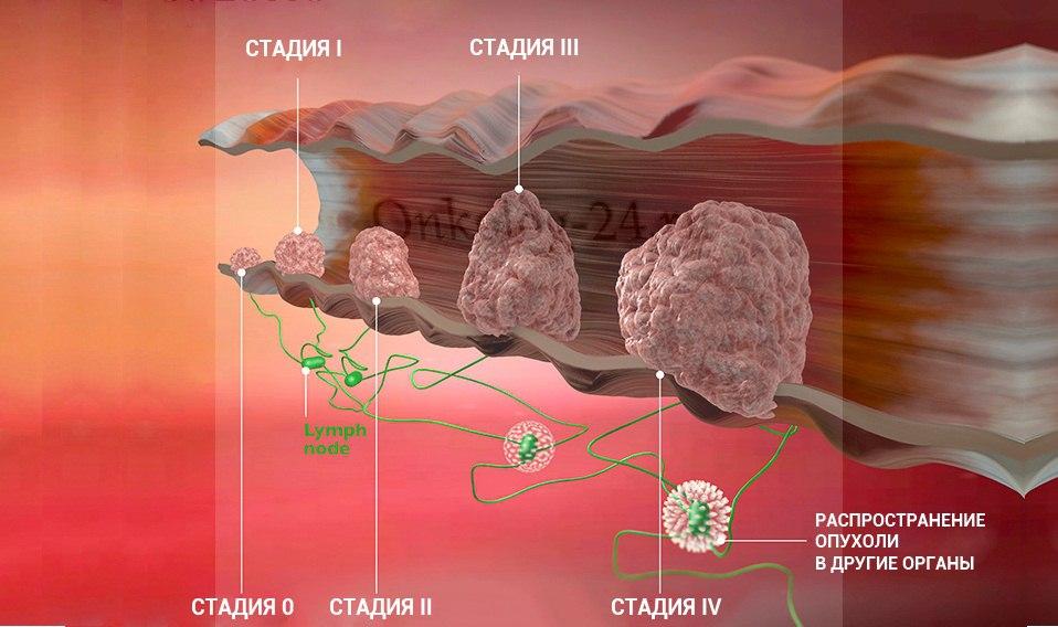 stadii raka