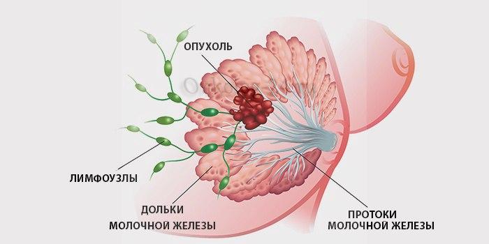 vyzhivayemost pri porazhenii limfouzlov pri rake grudi