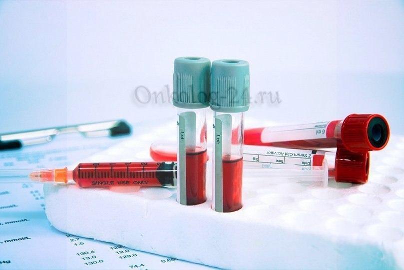 Analizy krovi pri limfome