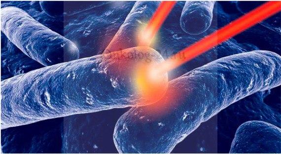 FDT terapiya v onkologii