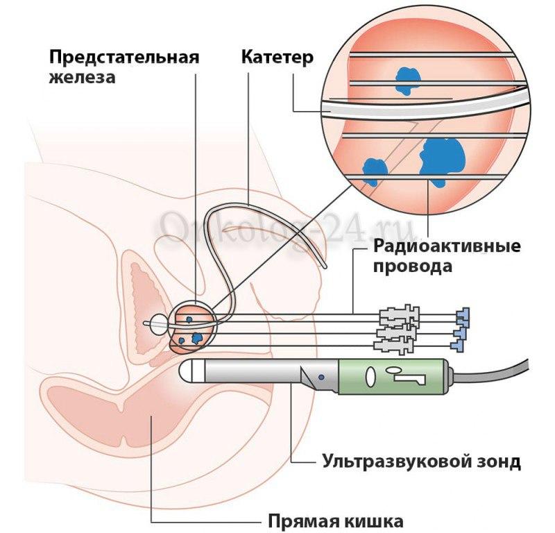 brakhiterapiya pri onkologii prostaty