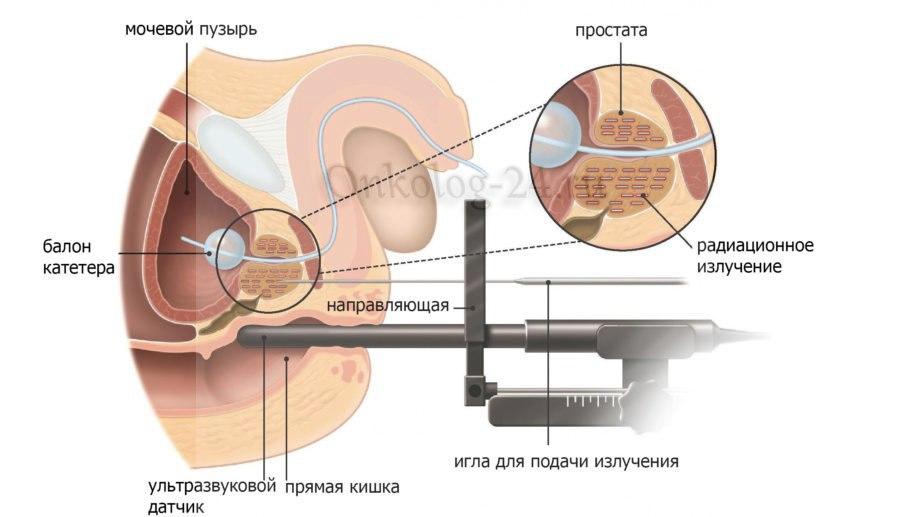 brakhiterapiya pri onkologii
