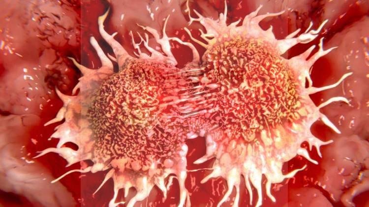 stadii rak