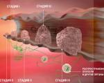 0, 1, 2, 3, 4 стадия, степень рака — как развивается, прогноз и локализация онкологии на ранней и начальной стадии развития