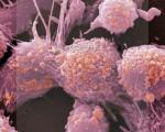 Метастазы — что это такое, на какой стадии рака появляются, причины возникновения и пути распространения метастаз при онкологии